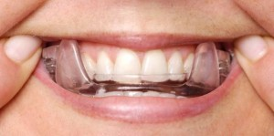 Oral appliance for sleep apnea